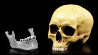 Human Skull without Jaw